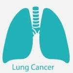 تاثیر عوامل محیطی در سرطان ریه lung cancer