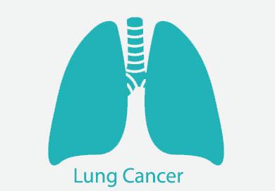 عوامل محیطی و سرطان ریه