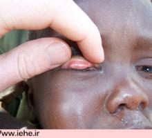 بیماری تراخم چشم