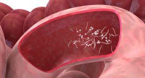 آلودگی با کرم سنجاقی ، کرمک ، Pinworms