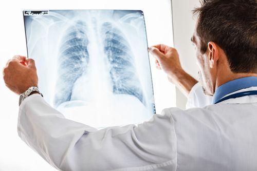 انواع بیماری های شغلی بیماریهای شغلی ppt بیماریهای تنفسی ناشی از کار بیماری های پوستی ناشی از کار عوامل زیان آور مکانیکی محیط کار بیماری های شغلی pdf کتاب بیماری های شغلی بیماری شغلی