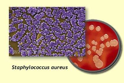 استافیلوکوکوس اورئوس چیست؟ استافیلوکوک ها استافیلوکوک اورئوس pdf درمان استافیلوکوک استافیلوکوک اورئوس مقاوم به متی سیلین استافیلوکوک طلایی استافیلوکوک اورئوس در مواد غذایی