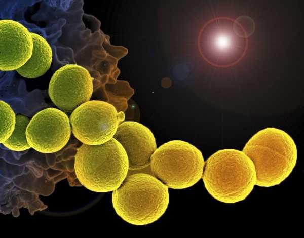 عفونت استافیلوکوکی MSRA بیماری های باکتریایی استافیلوکوک مقاوم متی سیلین تصویر باکتری استافیلوکوک