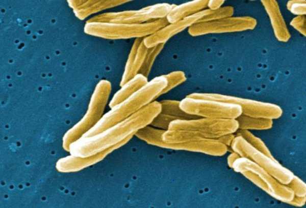 TUBERCULOSIS بیماری سل توبرکلوزیس باکتری سل تصویر باکتری بیماری سل