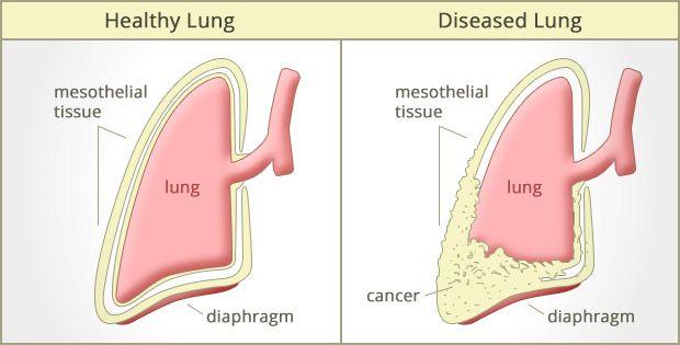mesothelioma بیماری آزبست بیماری مزوتلیوما بیماری های ریوی