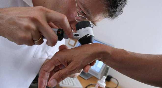 سرطان پوست ناشی از اشعه ماورا بنفش خورشید و برنزه کردن داخل سالن ها melanoma