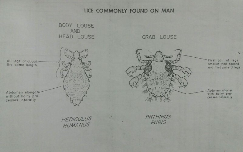 lice commonly found on man,شپش عانه,شپش یدن,تفاوت شپش عانه با بدن,body louse, carb louse